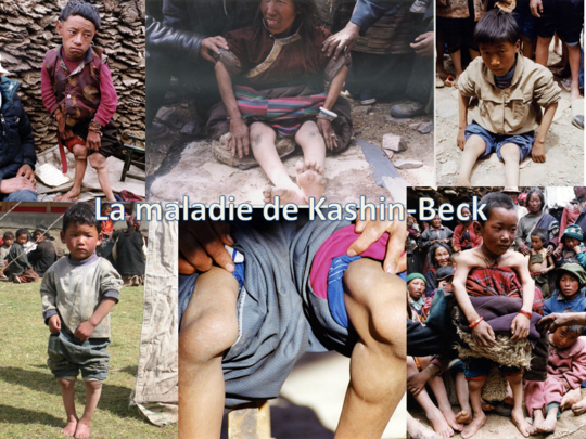 La_maladie_de_kashin-beck